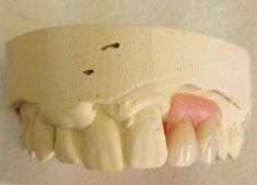 Walkinstown Dental Studio | Services | Dublin